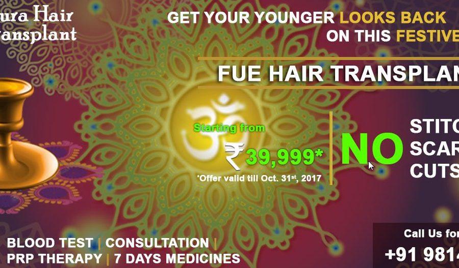 hair transplant in Punjab.jpg